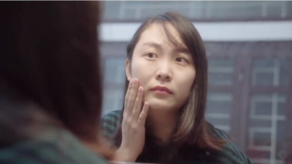 Da mặt sần sùi và xuất hiện tàn nhang
