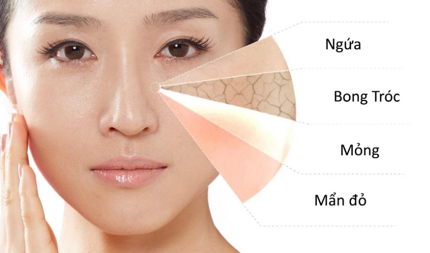 Người có làn da khô còn gặp phải tình trạng nóng rát châm chích không chỉ ở vùng mặt mà còn ở các vùng khác
