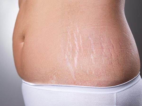Rạn da sau sinh có chữa được không?