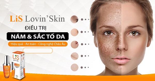 lis lovin skin có tốt không,lis lovin skin review,kem trị nám lis có tốt không,kem lis có tốt không,lis gel có tốt không,gel dưỡng da lis có tốt không,tinh chất thông đỏ lis có tốt không,lis trị nám có tốt không,lis lovin skin giá bao nhiêu,lis lovin skin webtretho,kem lis lovin skin,lis lovin skin bán ở đâu,lis trị nám có hiệu quả không,lis lovin skin có tác dụng gì,serum lis lovin skin,lis lovin skin có tốt không webtretho,lis lovin skin gel